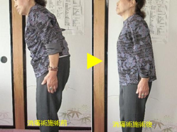 曲がった腰の改善事例