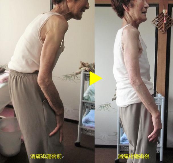背中の改善写真1