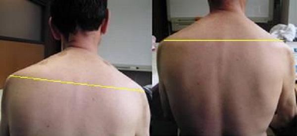 肩痛の改善