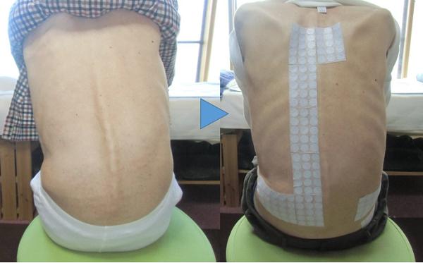 側弯症の改善2
