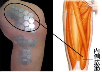 膝痛がよく起こる筋肉