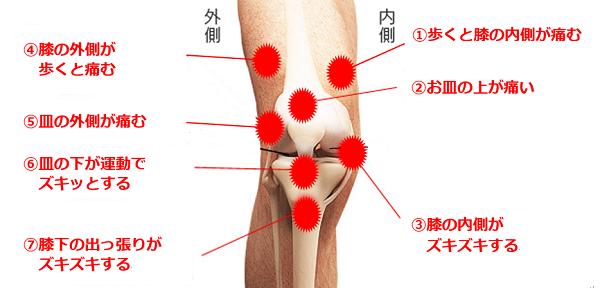膝の痛みの原因と改善方法