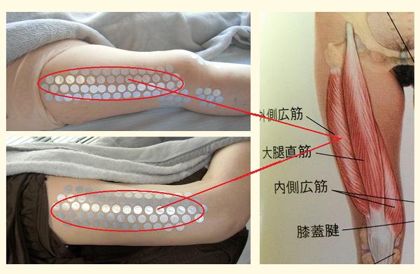 膝痛外側広筋事例