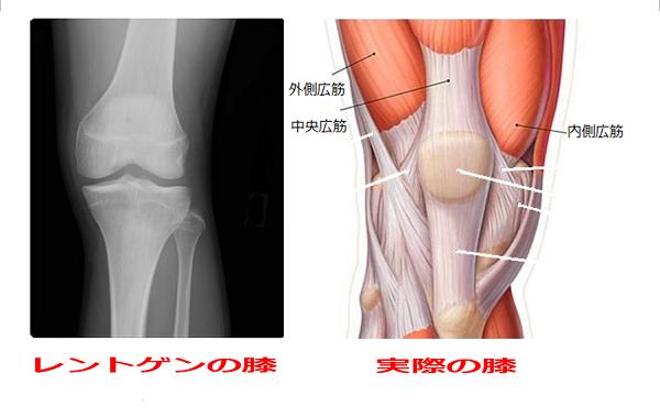 膝の筋肉とレントゲン