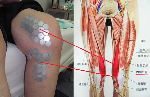 実際の膝痛状態