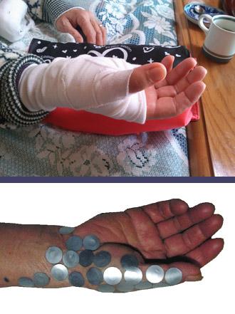 腱鞘炎の痛みを速攻で改善する方法