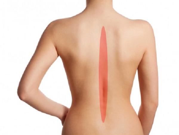 背中の痛み事例『背骨が痛い』『背骨が曲がっている』