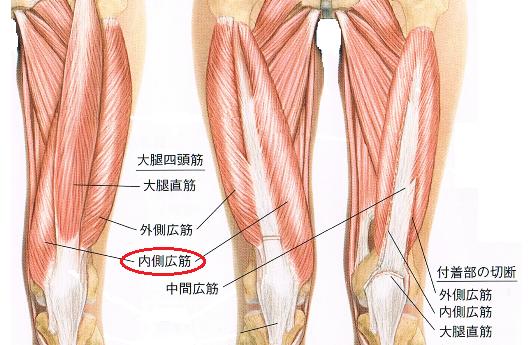 内側広筋の痛み