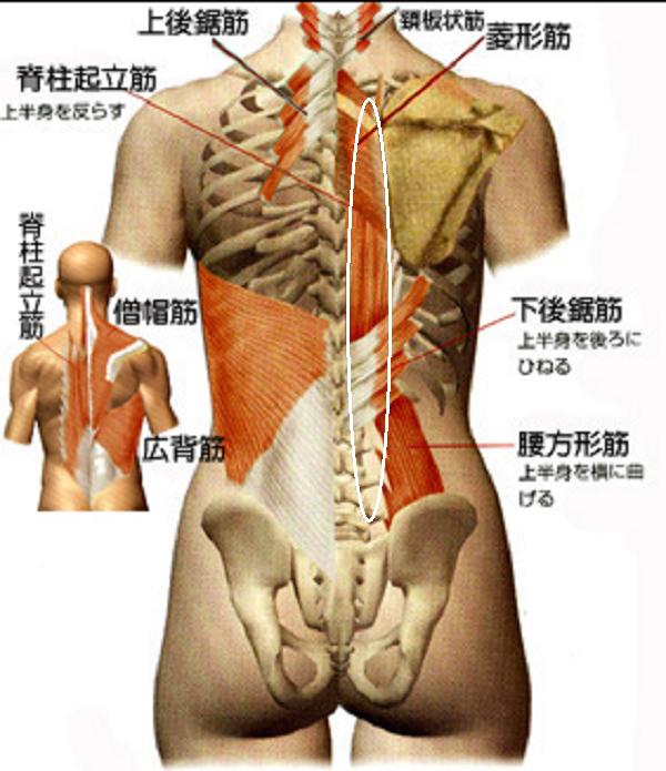 背中右側の脊柱起立筋が損傷