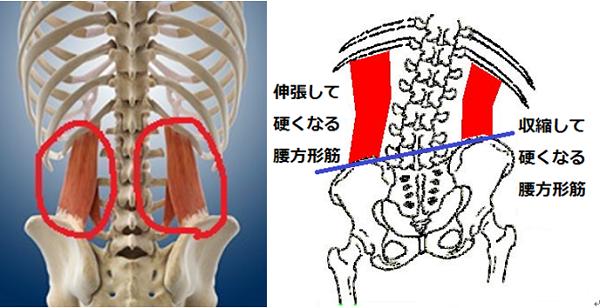 背中の痛み事例『背骨が曲がっている 側弯症』