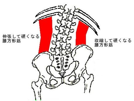腰方形筋の硬直 (1)