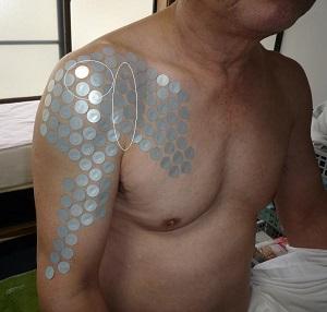 肩甲挙筋2