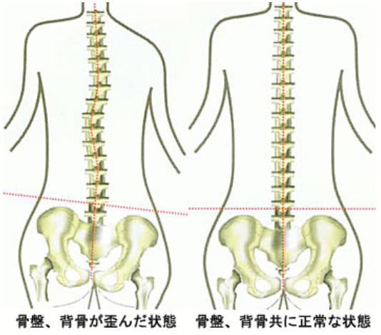 背骨が歪んだ状態