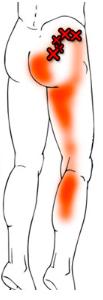 座骨神経痛の症状