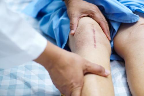 膝痛で手術は必要?〜膝の軟骨がすり減っていても手術せずに痛みを改善できたMさんの体験談〜